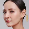 濮阳张大夫韩式三点双眼皮 私人定制 天生自然