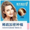 上海雍禾植发女性稀疏加密种植