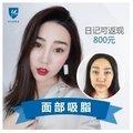 北京吸脂瘦脸 下面部吸脂 快速V脸 日记返现800元