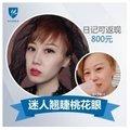 北京埋线双眼皮 恢复迅速 打造少女日系同款