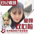 杭州面部脂肪填充 脂肪教父亲诊 高存活率塑造童颜双心脸