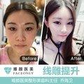 北京线雕提升中下面部 送女神机面部提升 私信即送皮肤四选一项目 线雕瘦脸抗衰