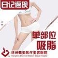 """杭州吸脂双侧上臂/副乳/小腿 三选一 结构性分层技术 今夏做个""""瘦腰精"""""""