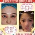 眼部修复 双眼皮失败二级修复 修复双眼皮过宽过窄 左右不对称 专注眼部整形二十年