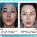 眼部失败修复 双侧重度上睑下垂修复 大小眼 眯眯眼 来美安专注眼部整形修复二十年