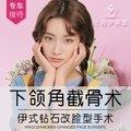 上海下颌角截骨术 钻石改脸型 打造您的专属脸型