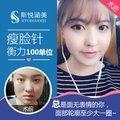北京衡力瘦脸针 100单位 10年以上整形从业专家亲诊 瘦脸均匀 不影响表情肌