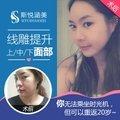 北京线雕提升 面部紧致 除皱平纹 10年以上经验口碑专家亲诊 实现逆生长