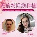 北京植发 限时抢购100元种植发际线100毛囊单位
