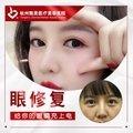 杭州眼部修复 私信送洁牙/水氧活肤 招募免费模特 私人定制 综合美眼