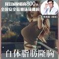 重庆prp脂肪丰胸(后期若有需要免费填充)存活率更高 肿胀期更短