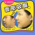青岛吸脂瘦脸 下颌缘+双下巴吸脂 V脸塑造 拒绝婴儿肥 打造精致面部轮廓
