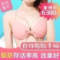 广州自体脂肪丰胸+超声波提升 案例价6380    胸部立挺 罩杯升级
