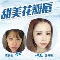 上海M唇手术/M唇成型综合设计/花瓣水润唇/甜美微笑唇 (中秋大促)