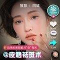 杭州皮秒祛斑王全脸1800元 轻松下斑做自己