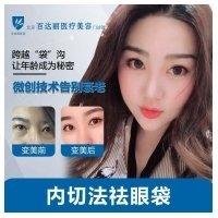 北京祛眼袋 告别眼部老态 年轻十岁逆生长