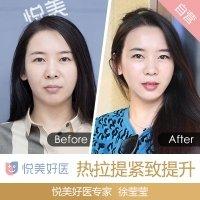皮肤专家徐莹莹 在线预约惊喜体验价3980 紧肤提升 让你V脸立显 以色列进口